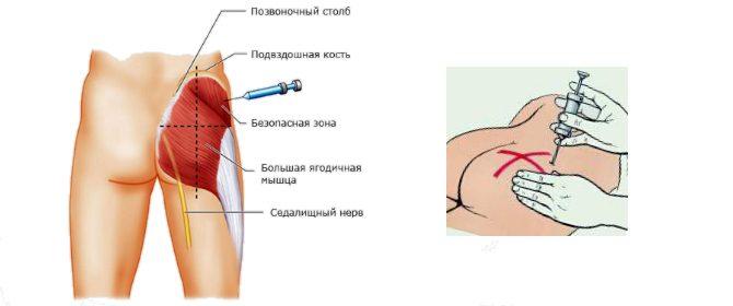 Как сделать ношпу