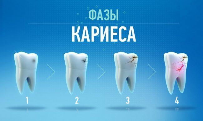 Безболезненное лечение зубов в санкт-петербурге