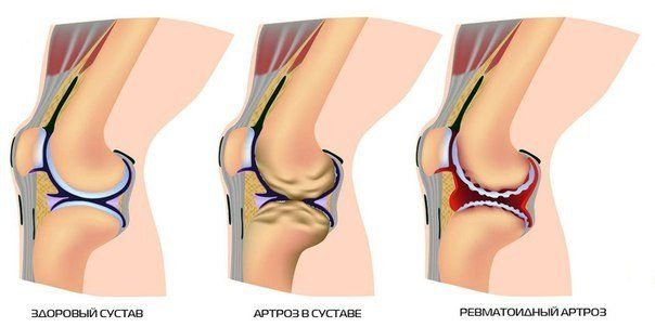 Для очищения сустав плюснефаланговые суставы - ортопед.стельки