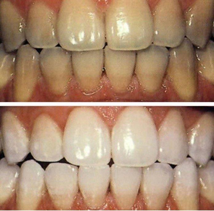 Стоимость отбеливания зубов zoom 4