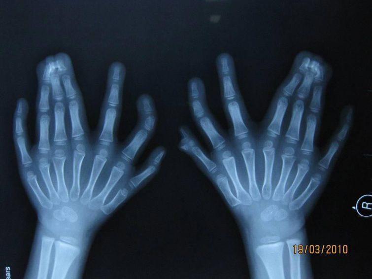 графии рентгеновских снимков