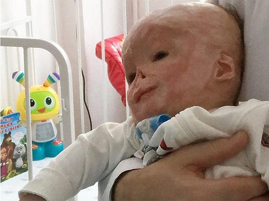 Напомним, родился 16 ноября года, в первые дни жизни получил ожог 70% тела в роддоме №1 города тулы.