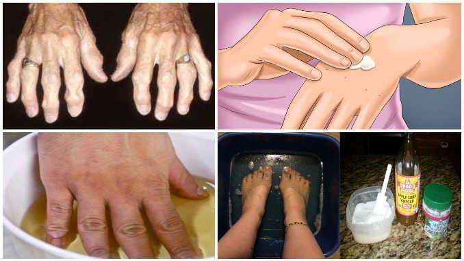 Народные средства лечения артрита пальцев рук в  710