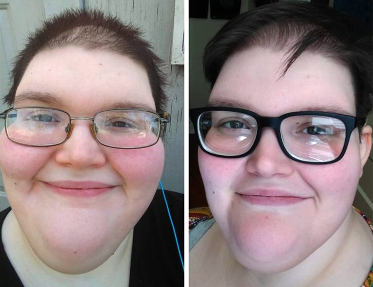 Как Очень Похудеть В Лице. Как похудеть в лице без использования радикальных мер