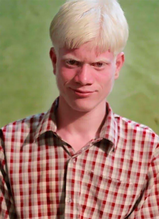 Самая большая в мире семья альбиносов из Индии