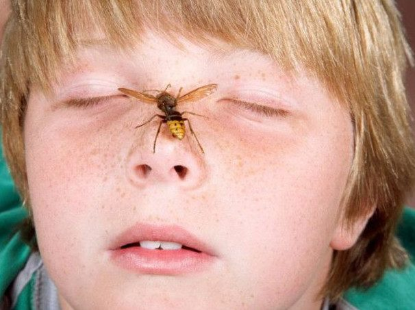 Как помочь ребенку, если его укусила мошка, комар или пчела?