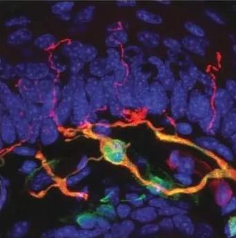 Учёные обнаружили новый орган, отвечающий за боль