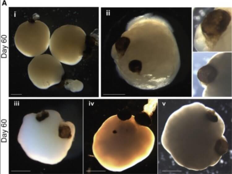 Учёным удалось вырастить мини-мозг с глазками