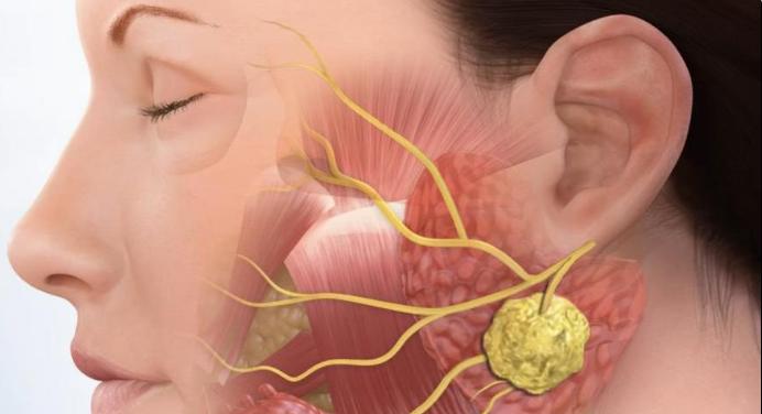 Причины, почему опухают лимфатические узлы