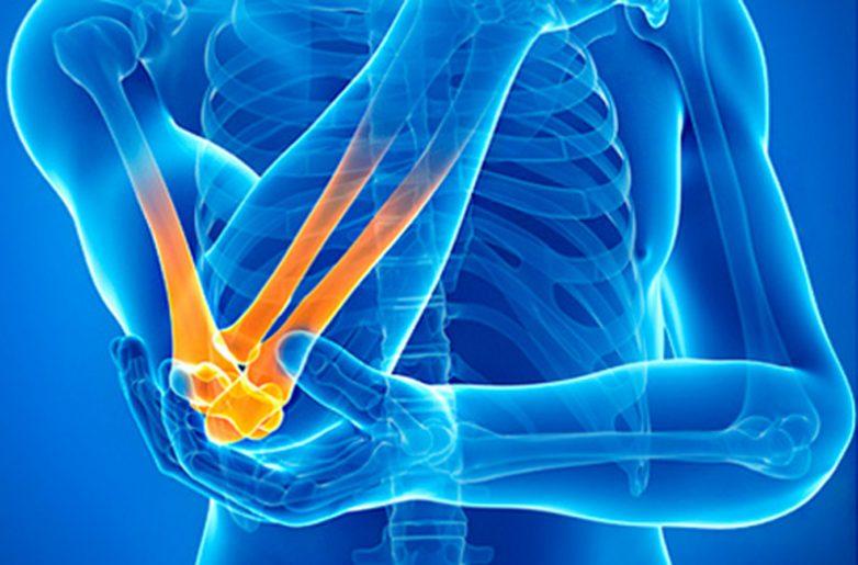 Симптомы и признаки остеоартрита