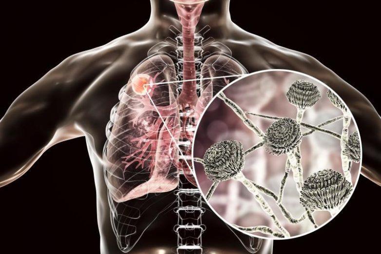 Какой вред наносят организму микотоксины