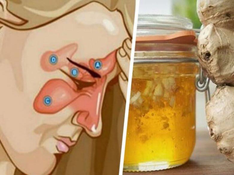 Натуральное средство против синусита