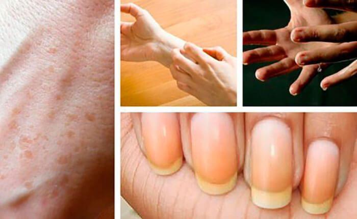 Что могут рассказать о здоровье ваши руки