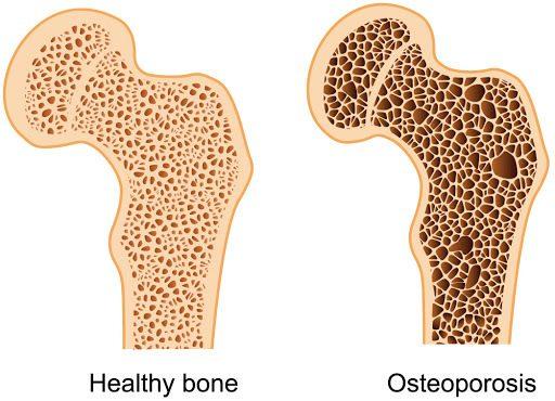 Как обеспечить здоровье костной ткани
