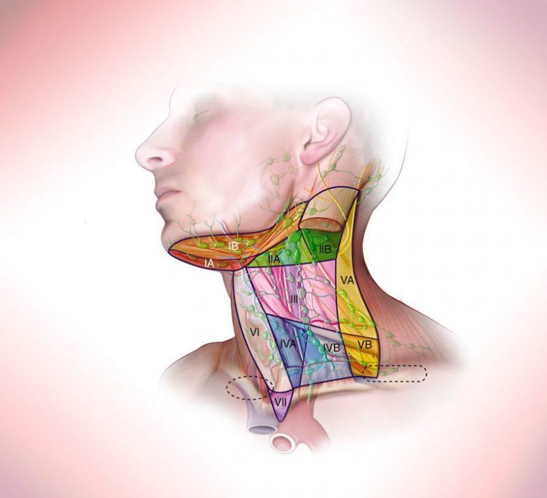 Мышечные зажимы шеи и головы, которые не дают нормально жить