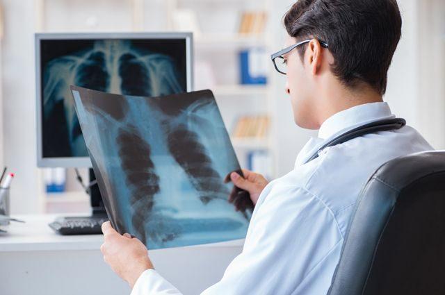 Как диагностируют и лечат рак легкого