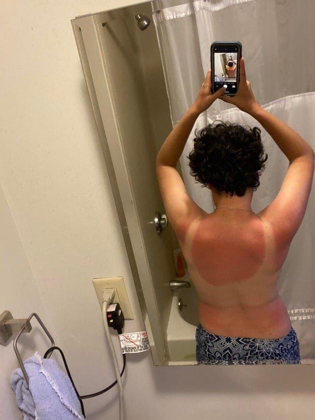 15 случаев, когда забыли о солнце, и теперь на страдания этих людей больно смотреть