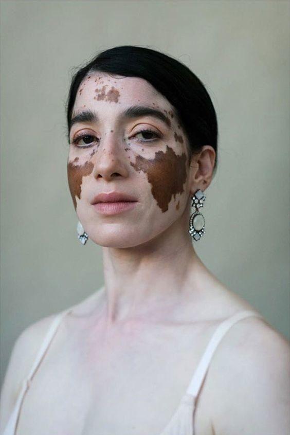20 людей с занимательными особенностями внешности, которые нельзя не заметить