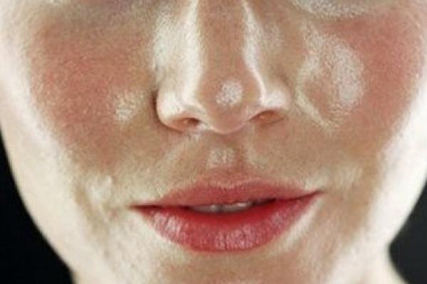 Распространенные ошибки в уходе за жирной кожей лица